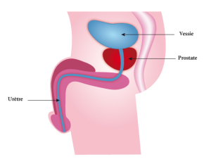 traitement adénome prostate